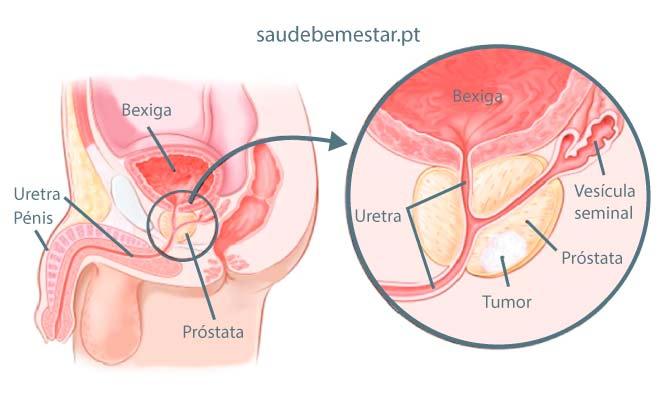 cancer gastric cauze si simptome what is human papillomavirus type 16