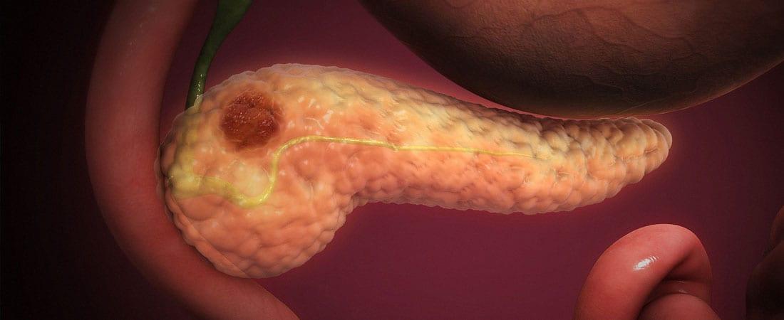 cancer pancreatic ultima faza simptome tratamentul sulitelor parazite