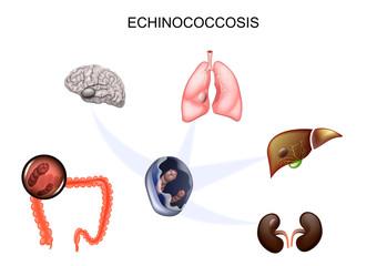 simptome rotunde și de vierme alege pastile pentru viermi