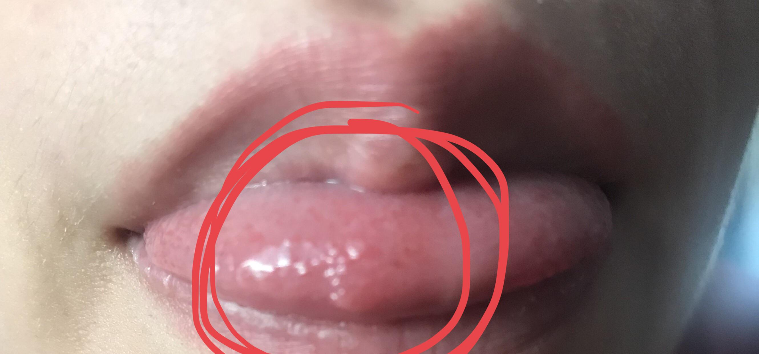 Warts and mouth ulcers, Warts and mouth ulcers