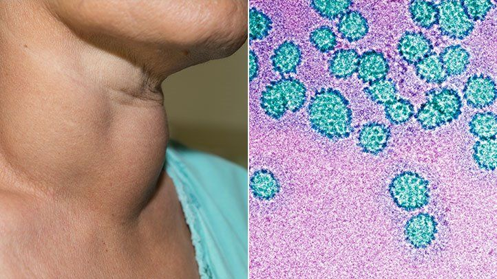 hpv throat cancer treatment side effects