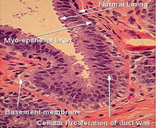 curățarea detoxifierii colonului criofarm al condilomului
