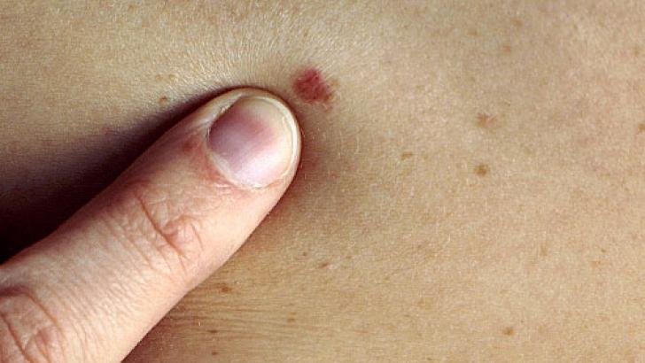 cancerul de piele se vindeca pastile pentru a preveni toți paraziții