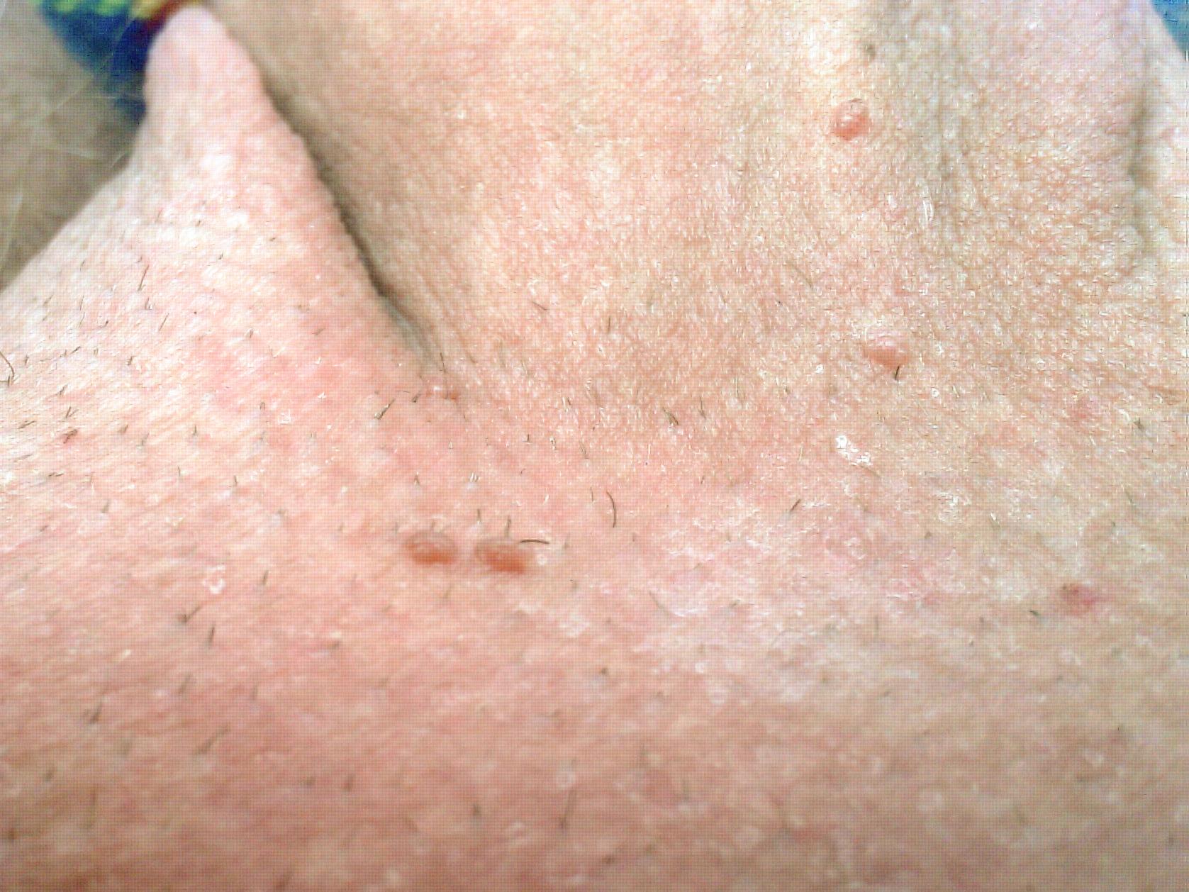 Papiloma ductal tratamento Papiloma ductal tratamento. Cancer de faringe tratamiento