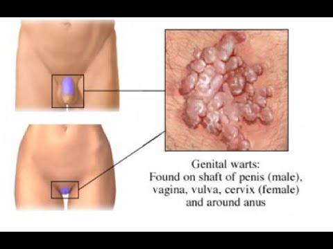 papilloma ano cum să scoți viermi mici