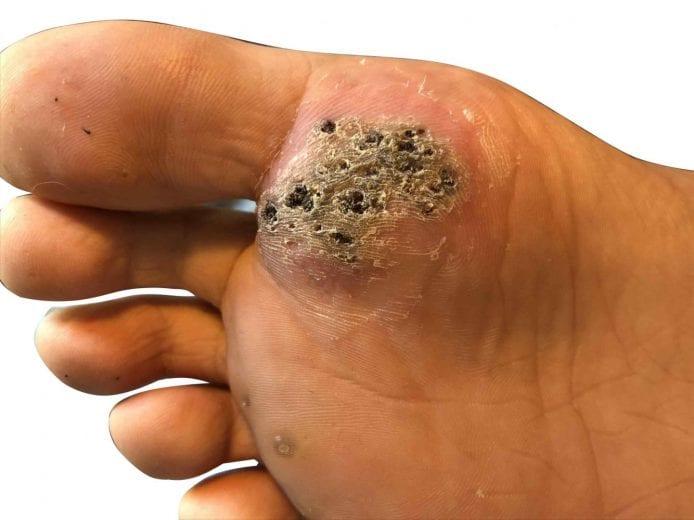 warts to foot
