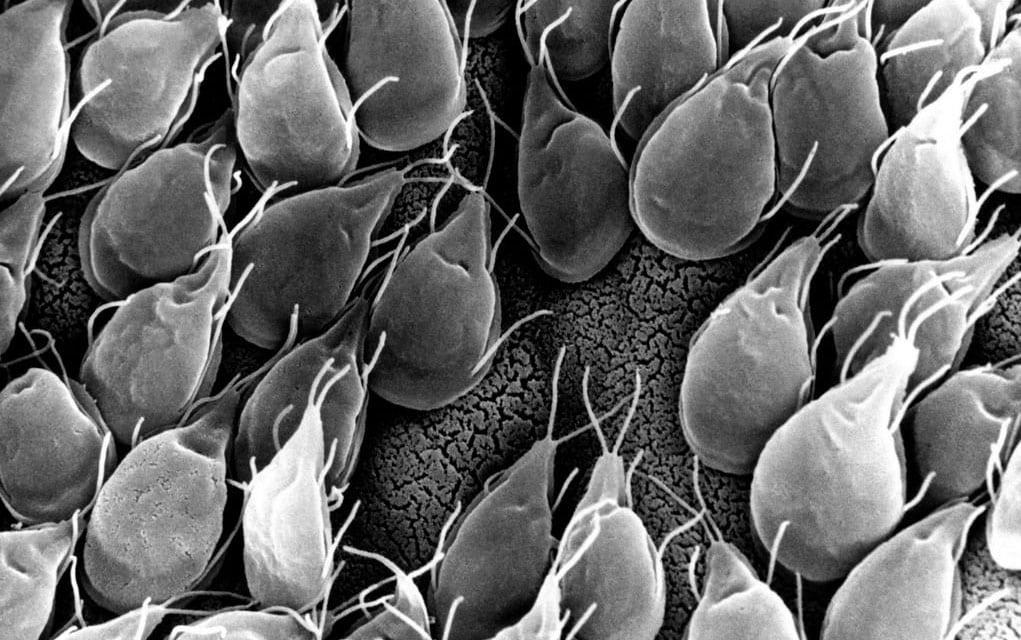 Paraziti u crijevima simptomi Gliste u izmetu coveka