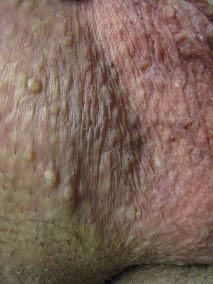 papillomavirus genital humain cum se îndepărtează papiloamele din zona inghinală