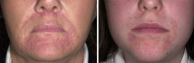 Negi negri pe gât: cauze, tipuri și metode de a scăpa de creșteri agățate - Allergodermatosis