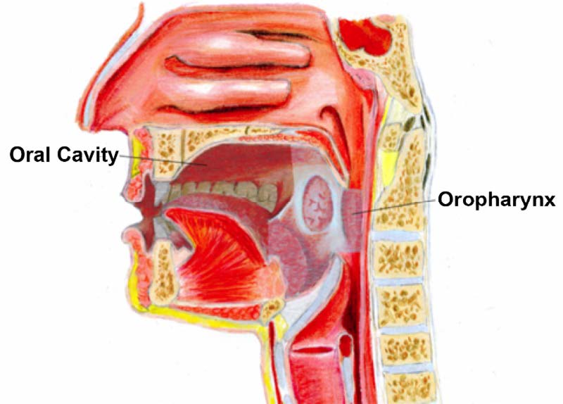 Symptoms of head and neck cancer caused by hpv - Oropharynx cancer caused by hpv