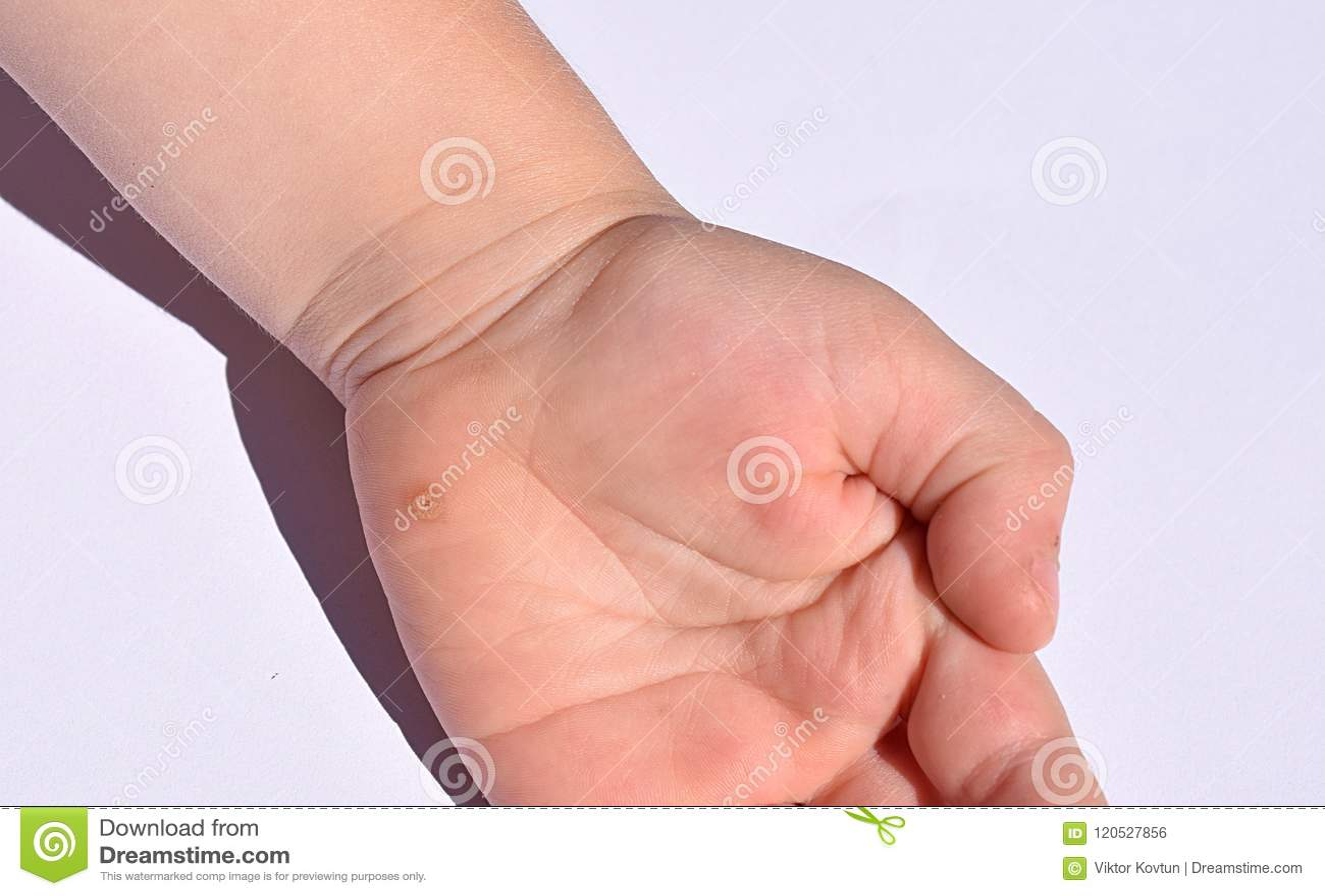 warts on hands of child medicamente pentru hpv