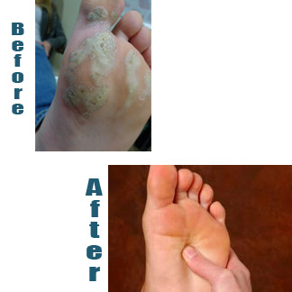 Wart on foot root, How To Get Rid Of Plantar Wart On Heel Of Foot papilloma lump in breast