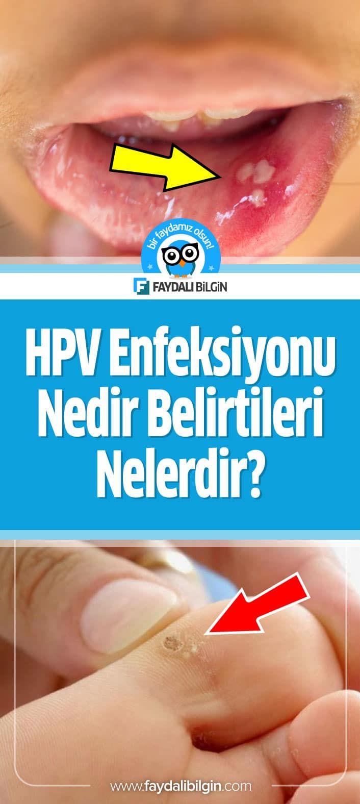 Human papilloma virus nedir belirtileri