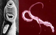 papillomavirus declenchement accouchement