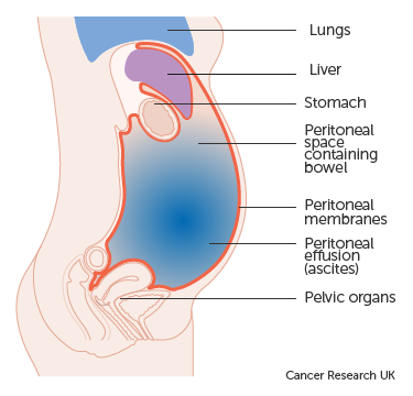 abdominal distension cancer