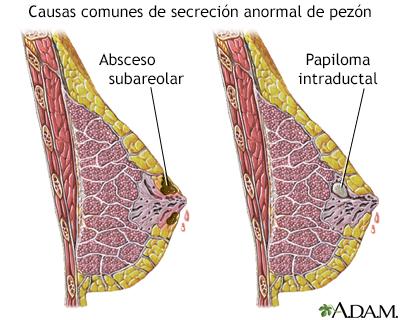 que es papilomatosis en seno