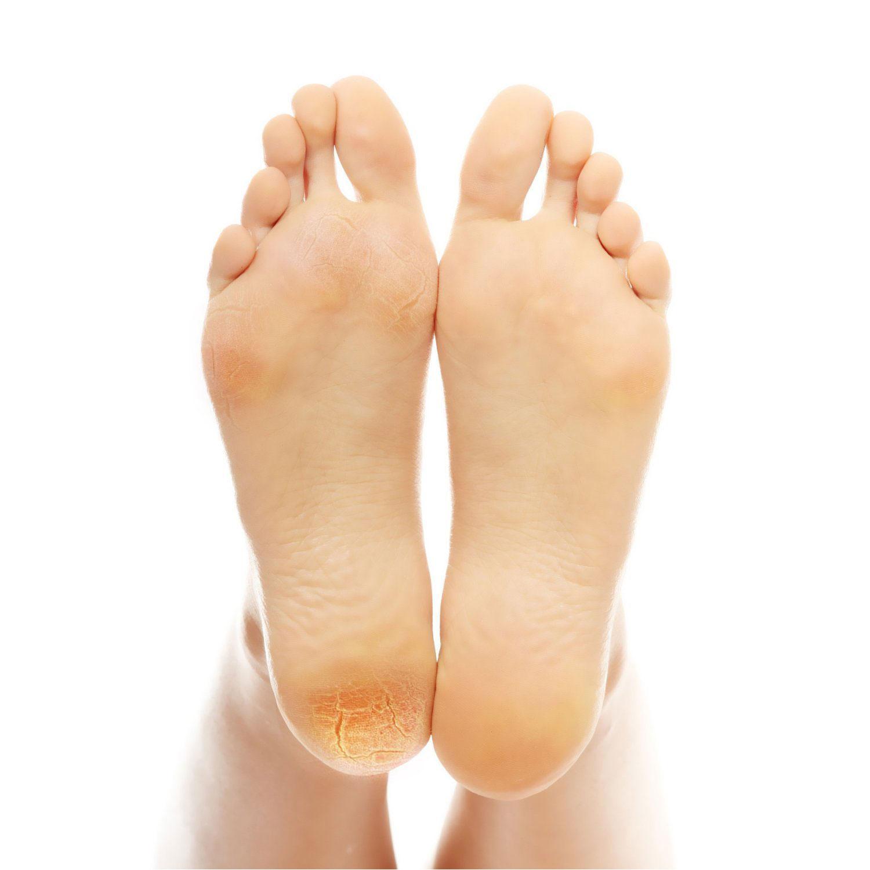 Bataturile plantare nu se trateaza la cosmetician sau dermatolog si nu se indeparteaza chirurgical