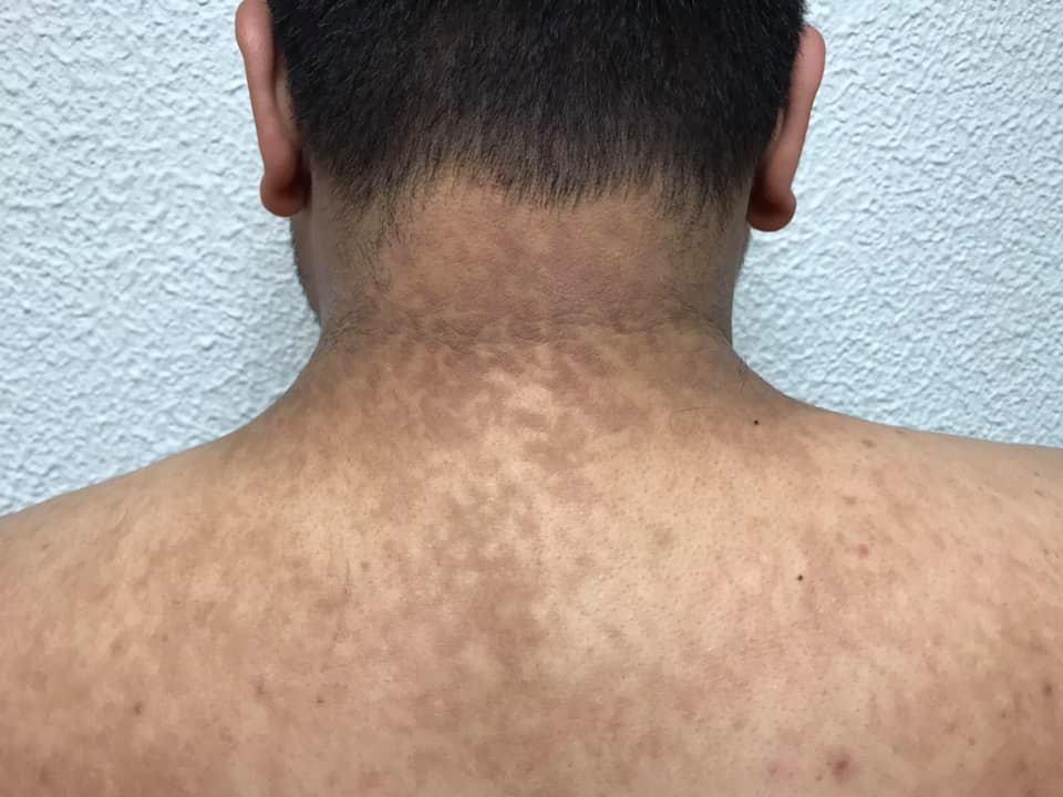 tratamiento para papilomatosis confluente y reticulada condiloame sesile
