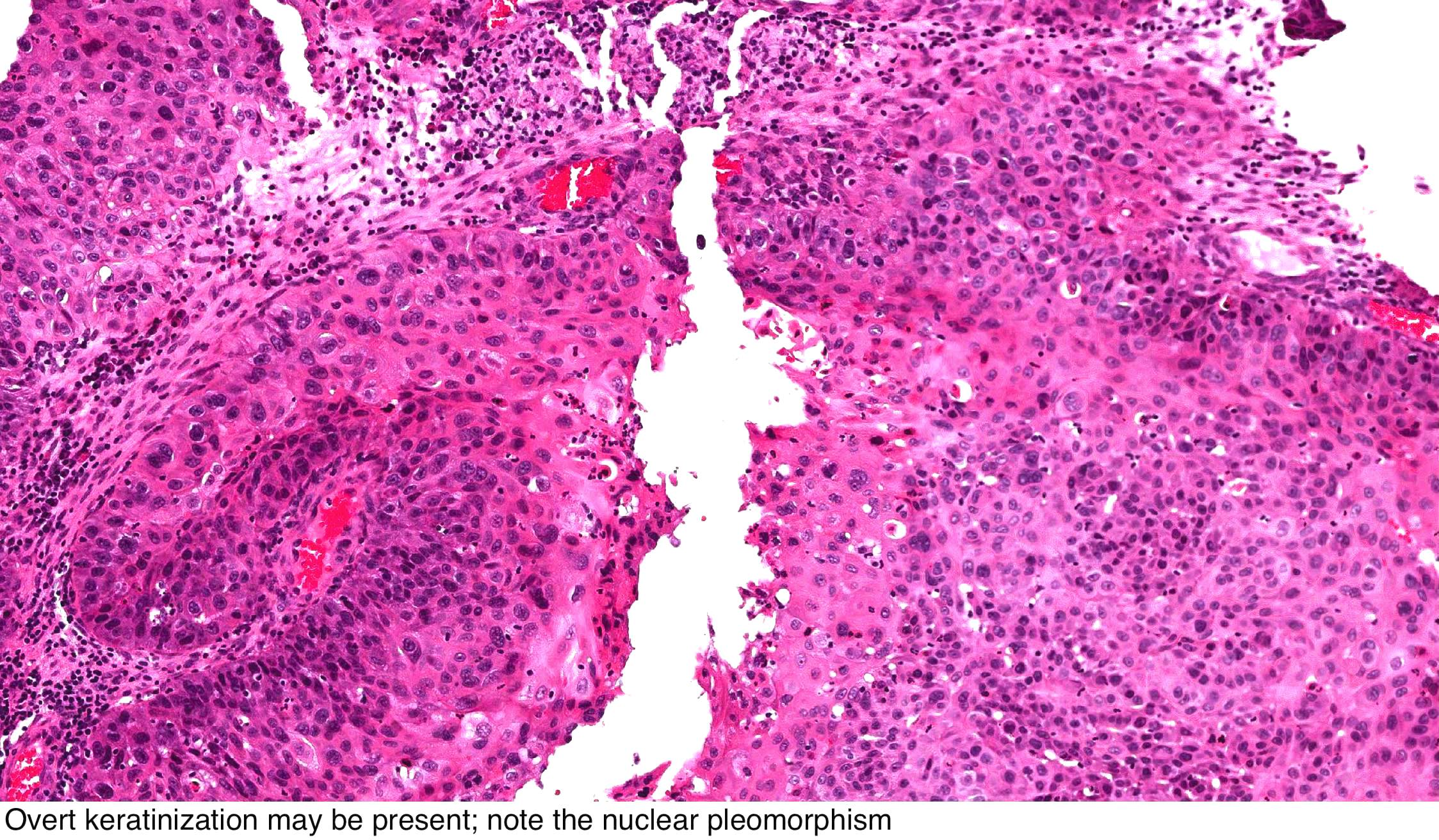 sinonasal inverted papilloma histology