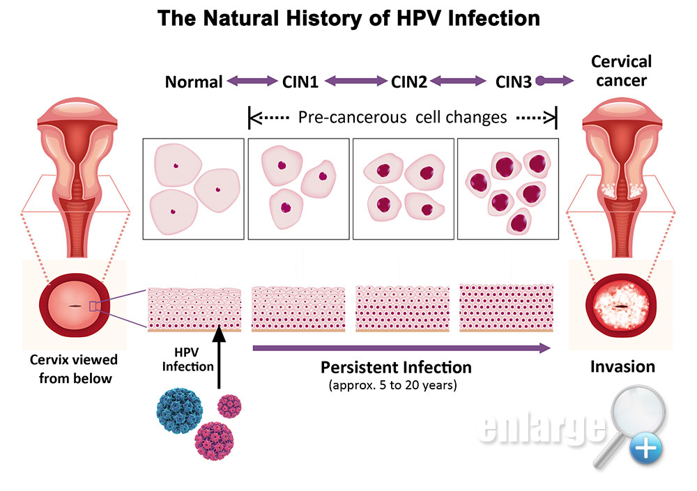 hpv cancer causing condiloame roz