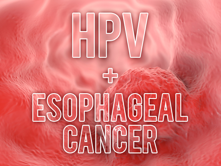 Hpv in esophagus symptoms - Hpv and esophagus