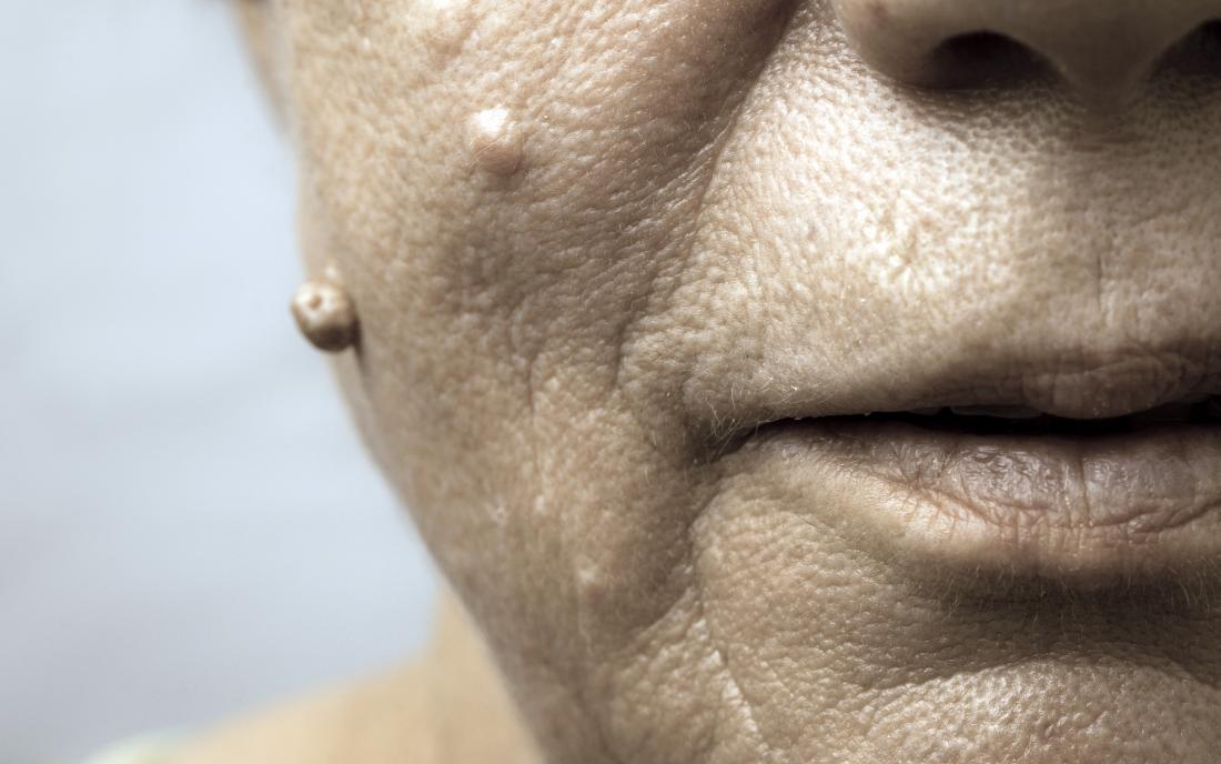 hpv face bumps
