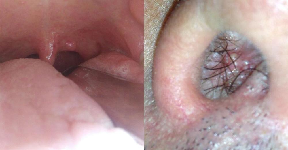 Papilloma virus nel palato
