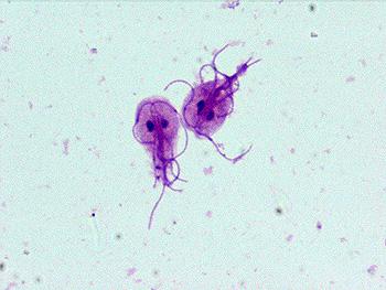 Panel gastrointestinal - bacterii, paraziti, virusuri - Detalii analiza | Bioclinica