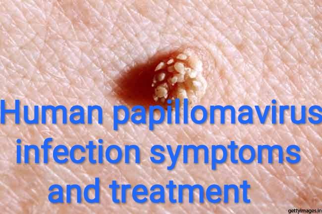 papillomavirus infection cure