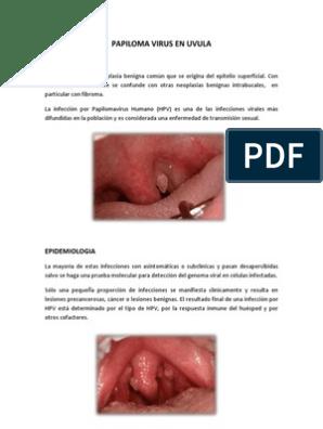 Viral papilloma uvula