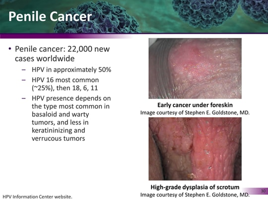 hpv 16 and penile cancer