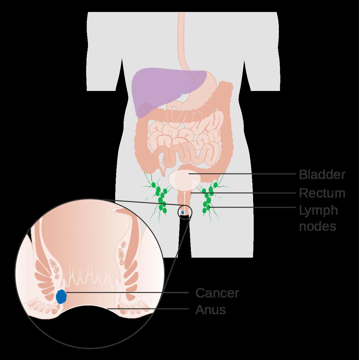 papilloma meaning in arabic morfologia teniei