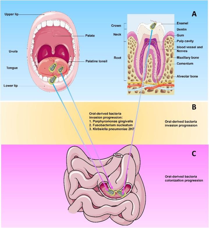 Xylitol dysbiosis