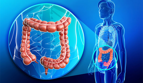 cancer colon ultima faza simptome