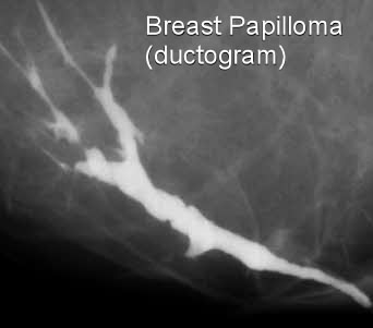 intraductal papilloma hereditary