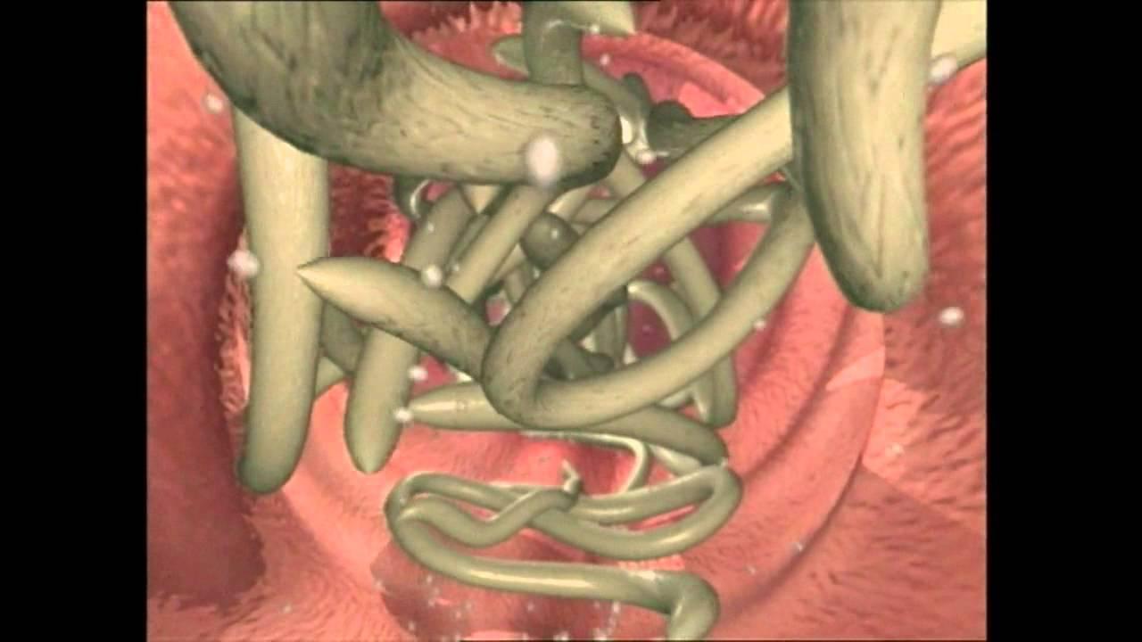 cum să scoți viermii din fundul tău virusul papilomavirus uman poate fi vindecat