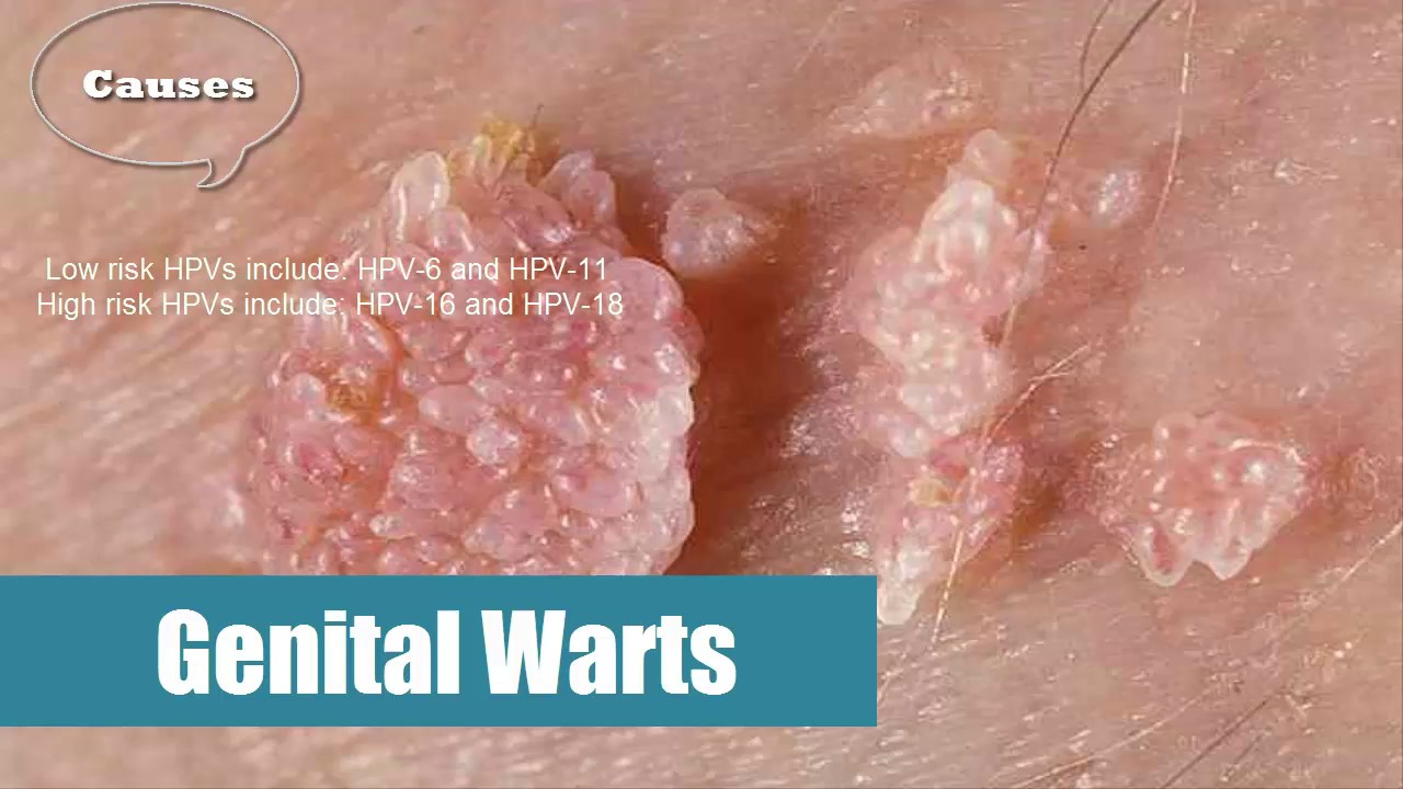 hpv virus that causes genital warts