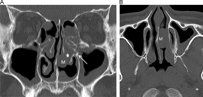Frontal sinus osteoma – case report - History of nasal papilloma