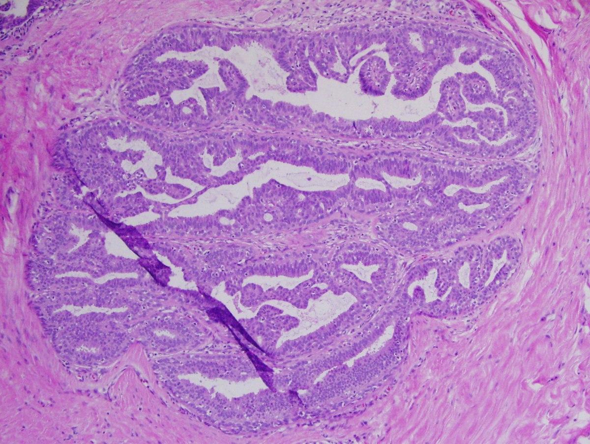 Focal intraductal papillomatosis