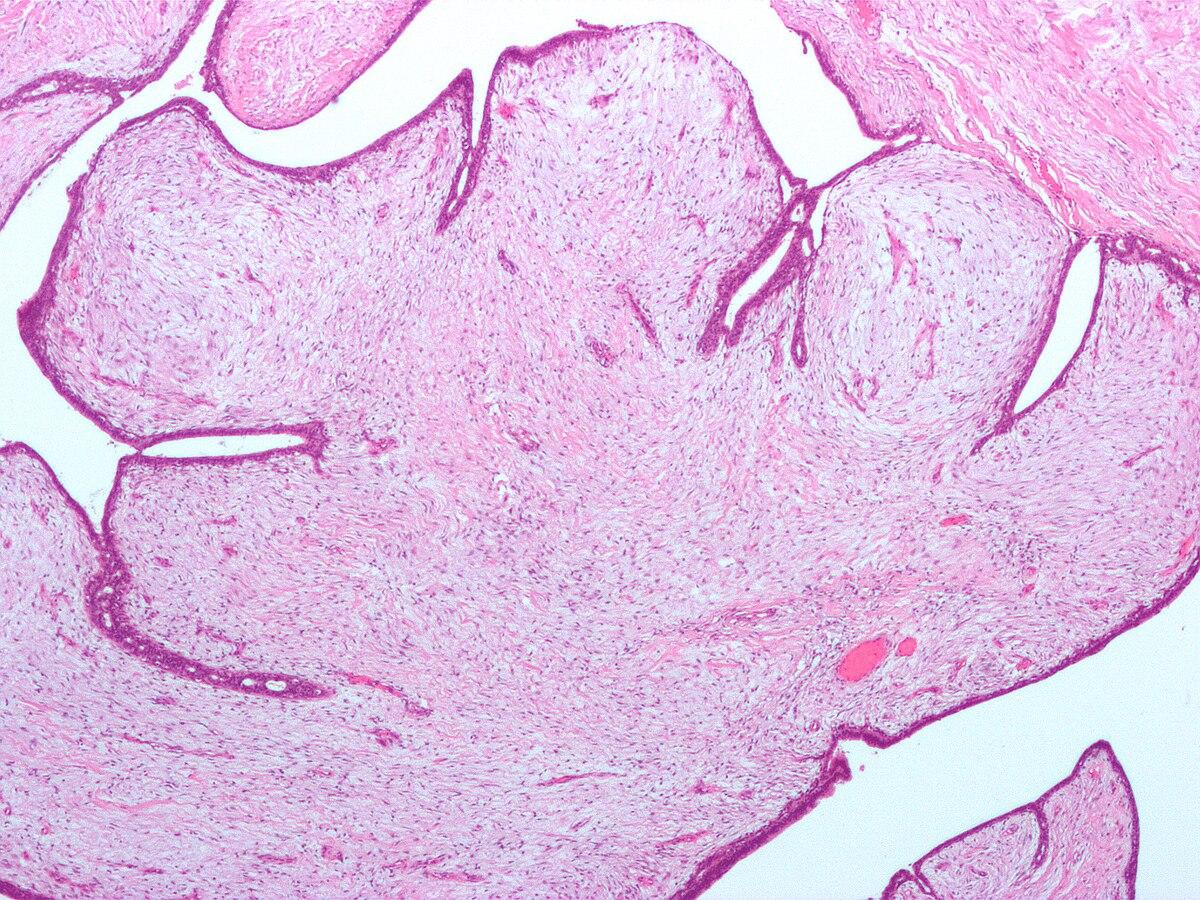 enlever les toxine du corps papilloma vescicale e maligno
