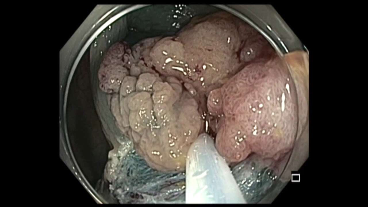 Bowel cancer hepatic flexure - topvacanta.ro