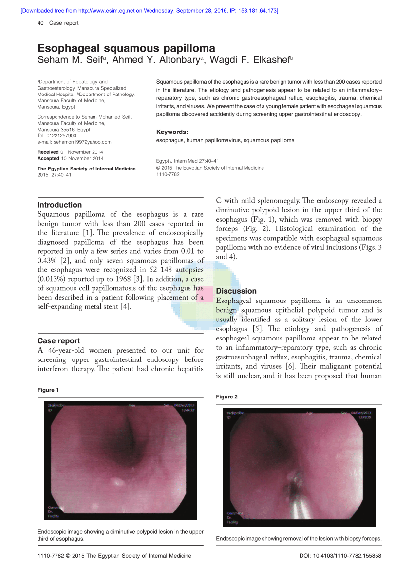 papilloma in esophagus