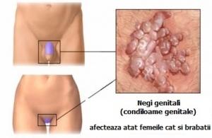 rectal cancer with lymph node involvement dispozitive pentru eliminarea viermilor la copii