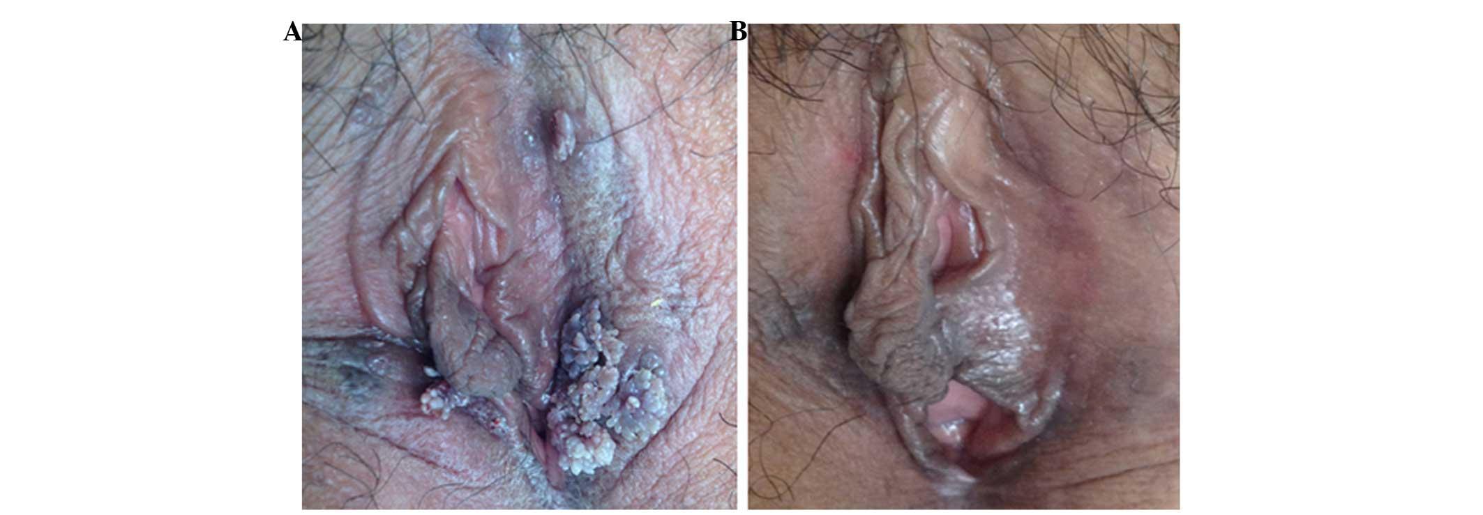 condyloma acuminata and pregnancy