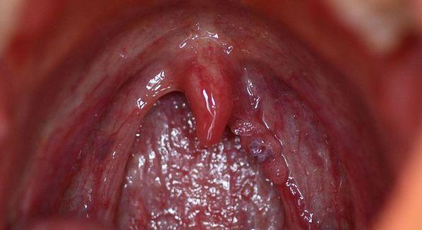 virus hpv na boca hpv virus sintomi
