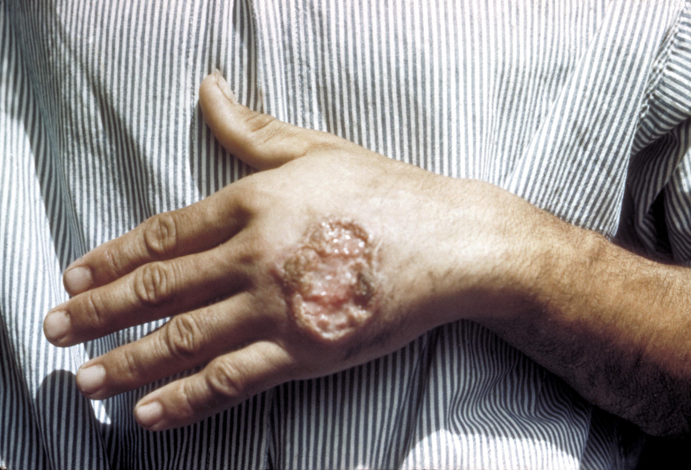 Leishmania spp. şi leishmanioza – topvacanta.ro Paraziti leishmaniaza