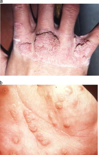Hpv wart skin., Hpv on skin