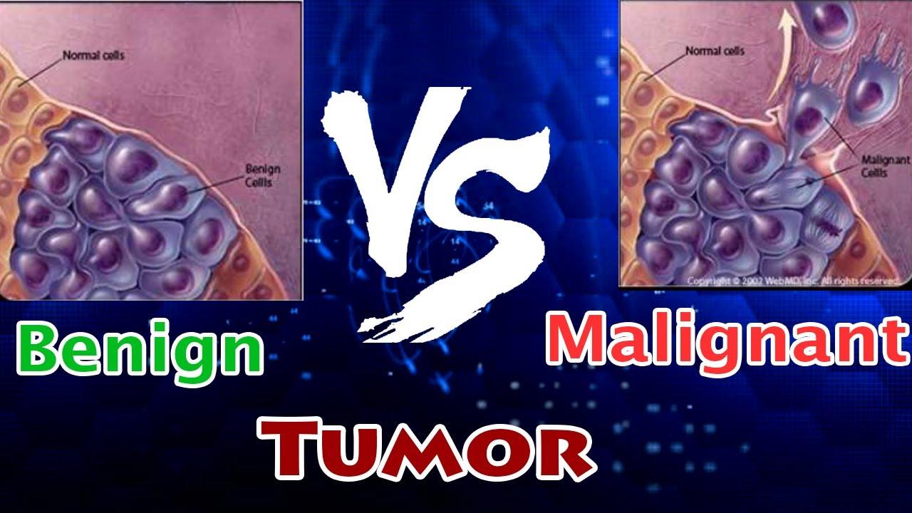cancer cells benign malignant medicacion contra oxiuros