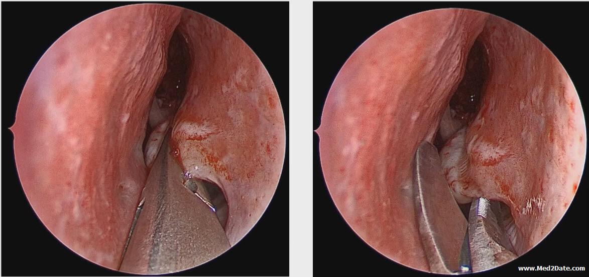 inverted papilloma disease