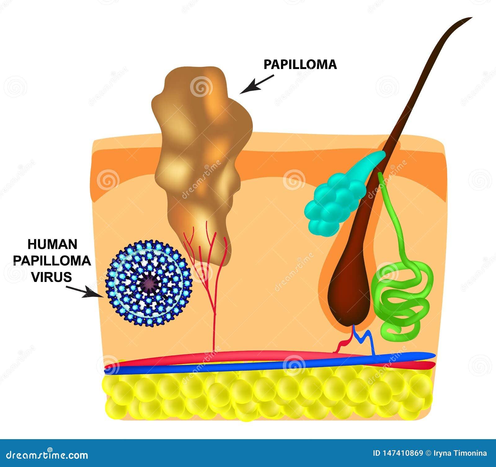 papilom pigmentat
